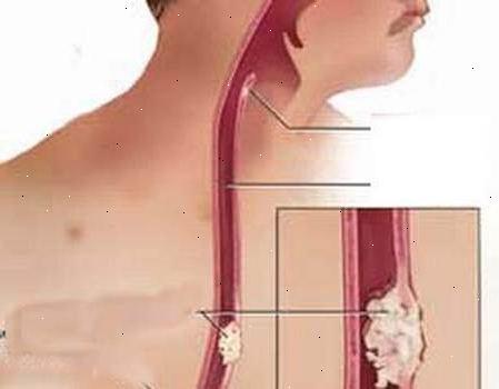 Как лечить рак пищевода?